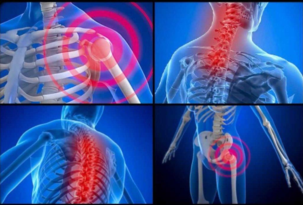 Fibromialgia Cause